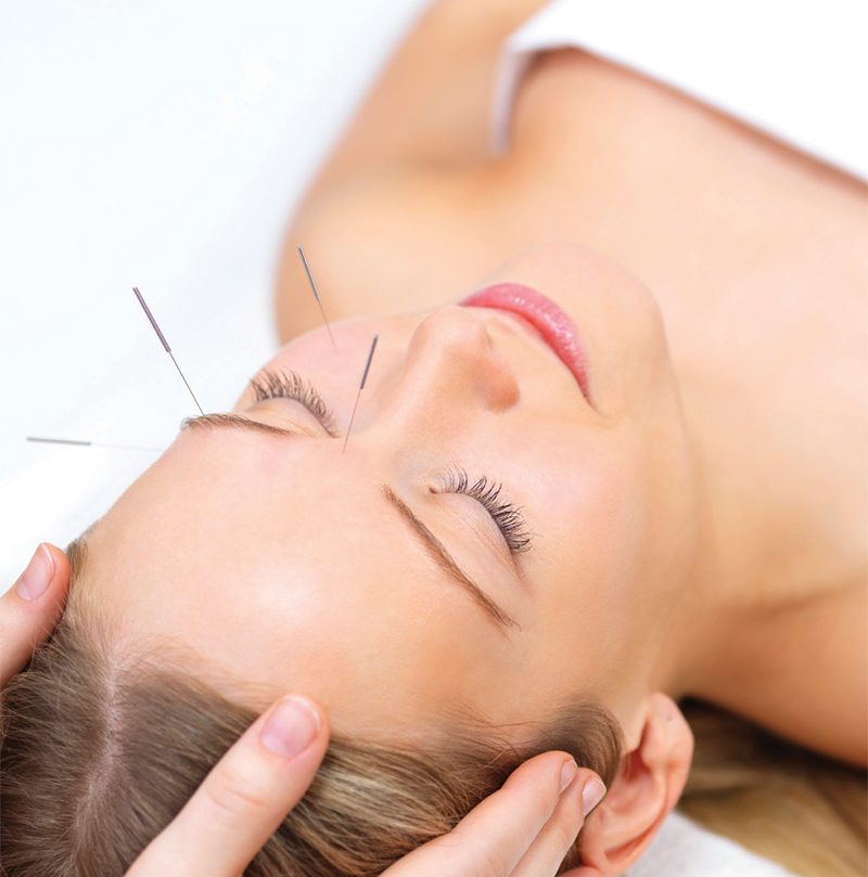 acupuncture facial service