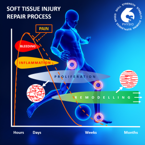 soft tissue injury repair process - over soccer player image