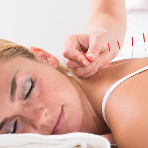 Acupuncture and TCM Central Coast